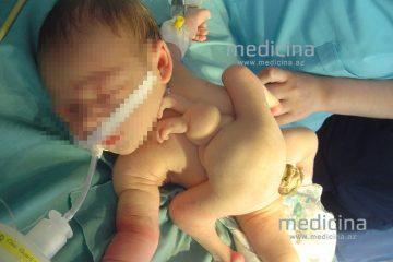 """""""წელს 8 კიდურიანი ბავშვი არ დაბადებულა"""" – აზერბაიჯანის ჯანდაცვის სამინისტრო"""