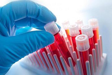 ბავშვების და ქალების მდგომარეობის, ასევე, წყლის ხარისხის და 2-7 წლის ბავშვების სისხლში ტყვიის შემცველობაზე კვლევა ტარდება
