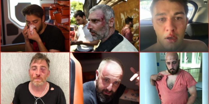 თბილისში დღეს განვითარებული მოვლენებისას 16 მედიასაშუალების 47 ჟურნალისტი, ოპერატორი და ფოტოგრაფი დაშავდა